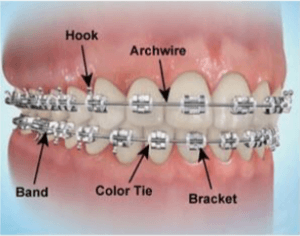diagram of parts of braces
